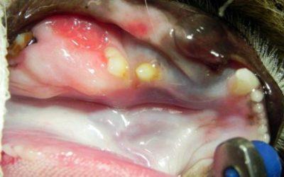 Rezecția parțiala a mandibulei ca urmare a unui ameloblastom